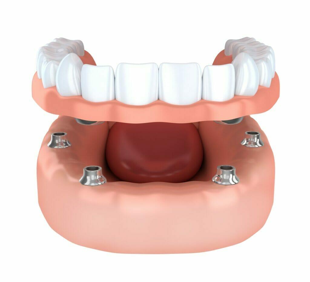 implant dentures in Kitchener