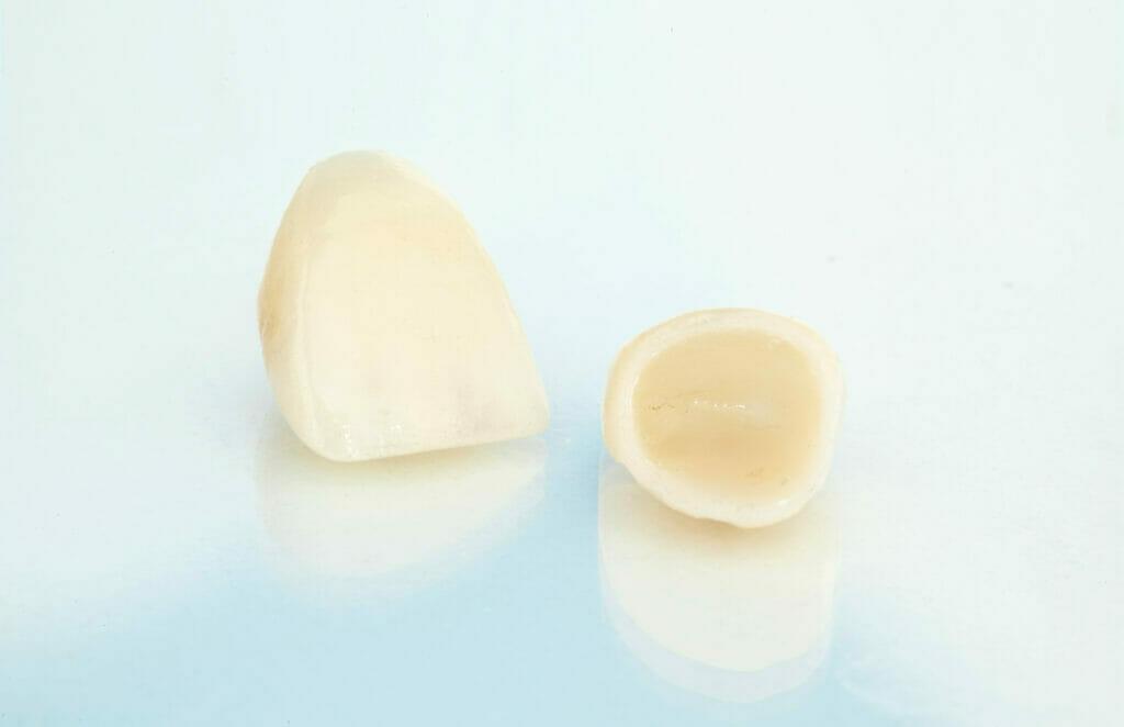 dental crown in kitchener