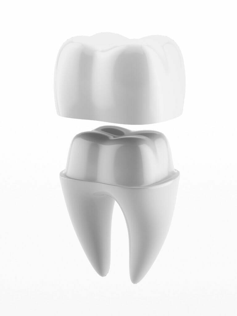 dental crown near me