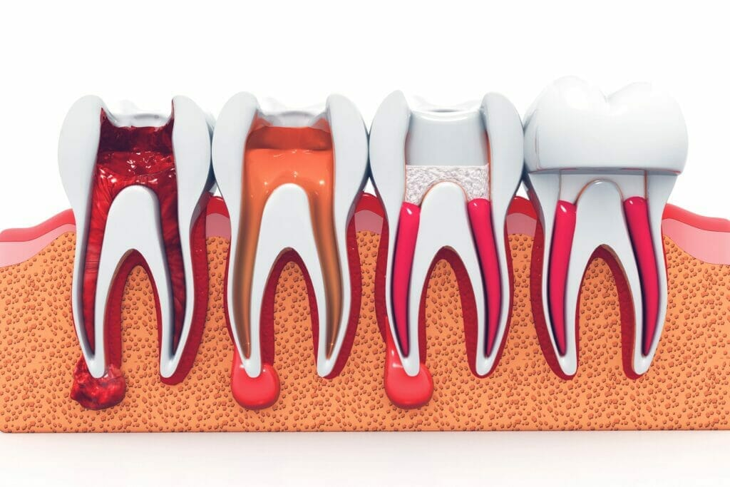 root canal by kitchener family dentist