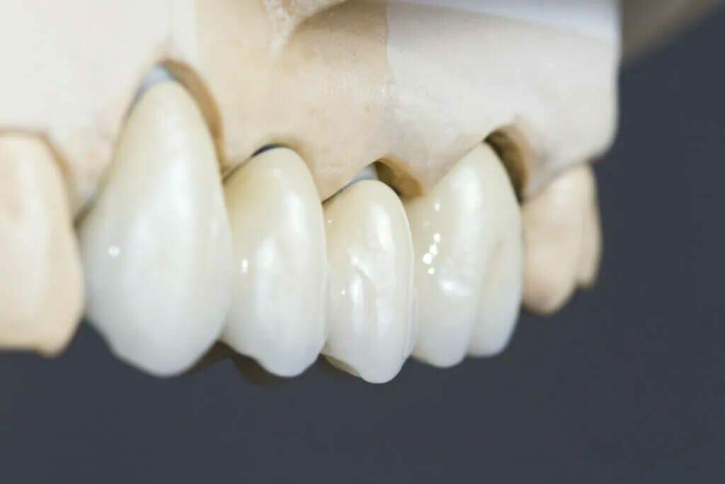 dental bridge in kitchener-waterloo