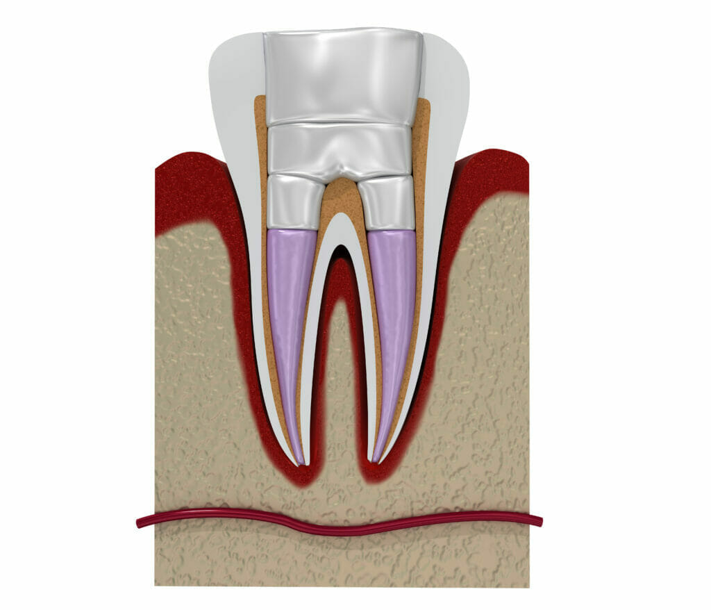 kw root canals