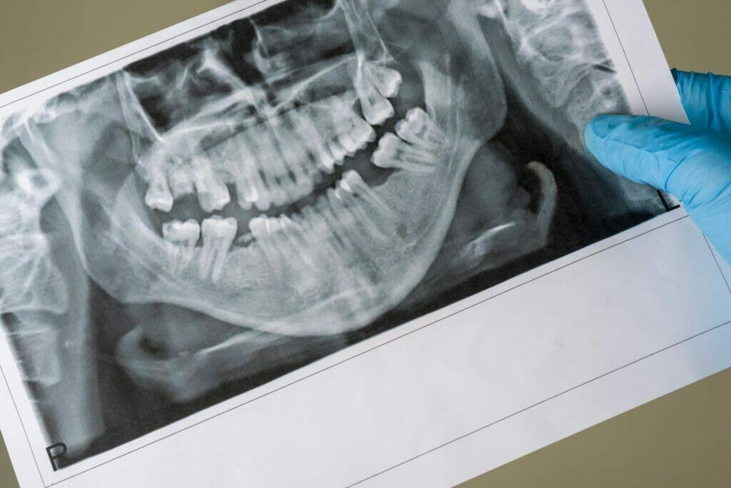 can dental bone loss be reversed